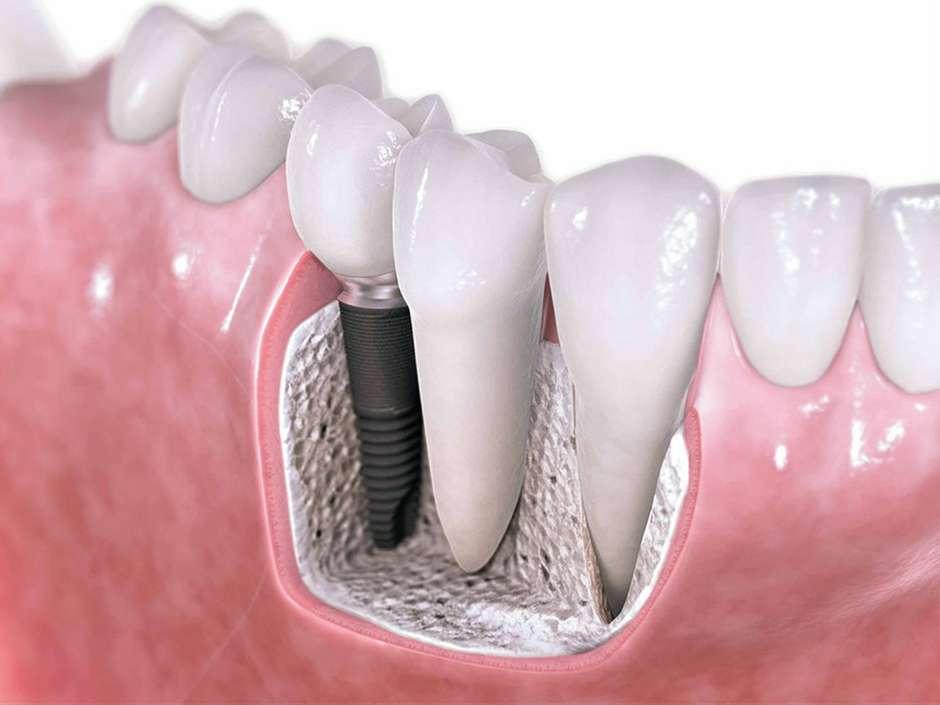 Восстановление культи зуба под коронку